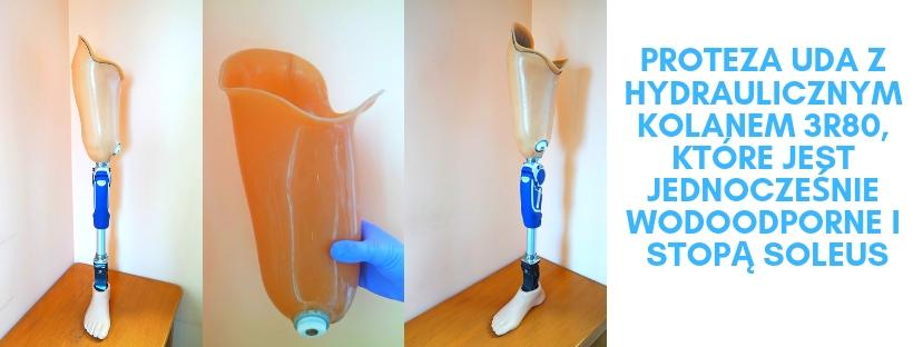 Proteza uda z hydraulicznym kolanem 3R80